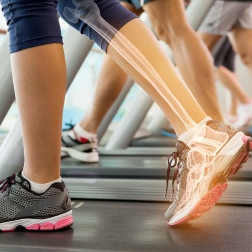 Bone experts publish consensus report on protein intake and bone health