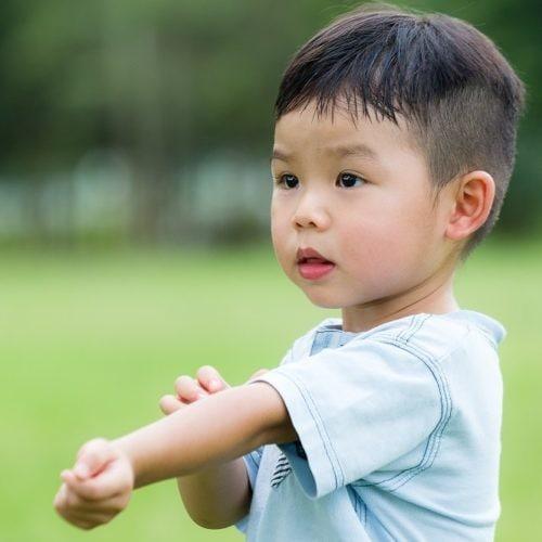 生命早期营养和卫生对儿童过敏的影响:来自远东的新见解