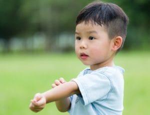 生命早期营养和卫生对儿童过敏的影响:来自远东的新见解 1